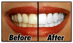 before-after-white-teeth